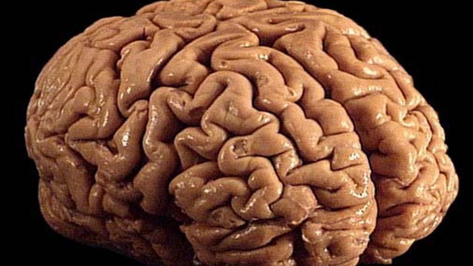 A brain. Image by Allan Ajifo.