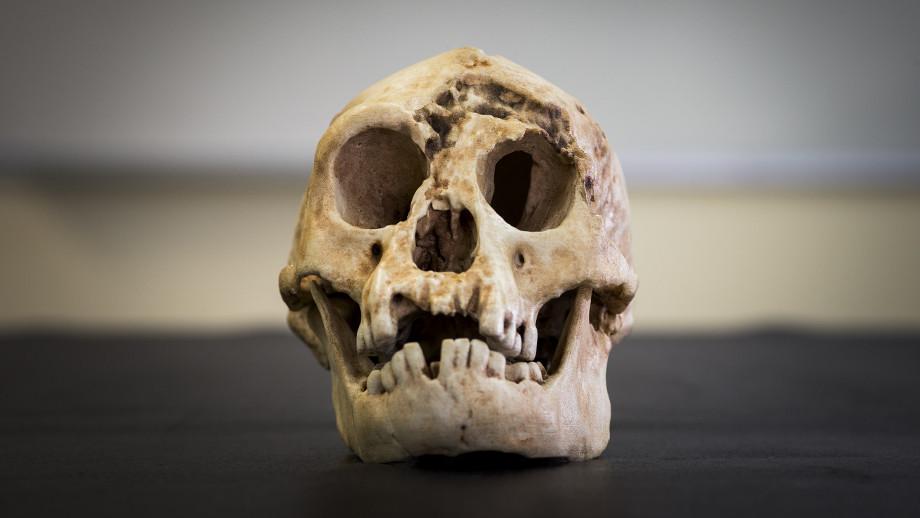A Homo floresiensis skull. Image: Stuart Hay, ANU.